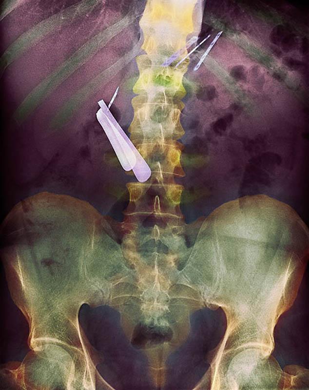 Самые странные рентгеновские снимки
