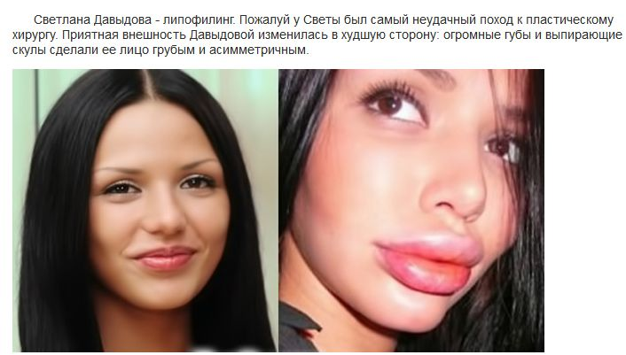 До и после пластических операций на Дом-2