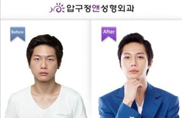 Корейские пластические хирурги