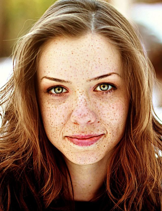Freckles and Girls